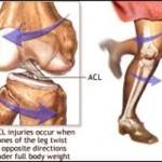 دلایل و درمان آرتروز زانو