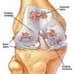 درمان های آرتروز زانو