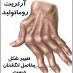 علائم و عوارض آرتریت روماتوئید