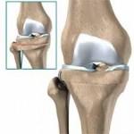 استئوتومی استخوانها
