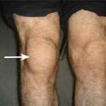 درد زانو در جلوی کشکک همراه با تورم معمولا به علت بورسیت کشکک