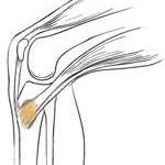 بورسیت و درد زانو در سمت داخل