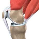 علائم و درمان التهاب تاندون عضله چهارسر