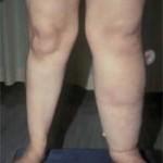 ورم ساق و پا چه عللی دارد – تورم یک طرفه
