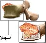 تومور استخوانی