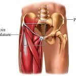 درد کشاله ران با منشا سیستم ادراری و تناسلی