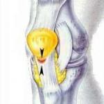 تشخیص و درمان تاندنیت یا التهاب تاندون کشکک