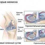 درمان زانو