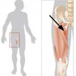 درمان كشيدگي عضلاني