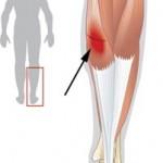 درمان پارگی عضلات پشت ساق