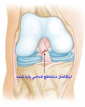 جراحی پارگی رباط زانوACL