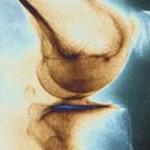عفونت مفصل زانو