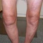 ساییدگی یا استئوآرتریت یا آرتروز زانو چه علائمی دارد و چگونه تشخیص داده میشود؟