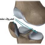 ضایعات و آسیب های غضروف مفصل زانو چه انواعی دارند؟