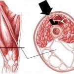 كوبيدگي و خونمردگي عضله