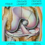 آسیب منیسک خارجی(Lateral meniscus injury)