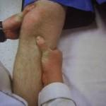 درمان نرمی غضروف زانو
