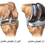 عوارض پروتز مفصل زانو