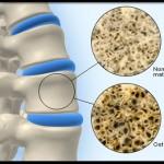 علائم و عوارض پوکی استخوان