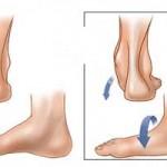 علل و علائم سندروم تونل تارس (درد کف پا)