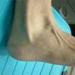 علل و درمان التهاب تاندون پرونئال در مچ پا