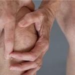 تشخیص و عوامل آرتروز