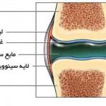تشخیص و عوامل دررفتگی مفصل