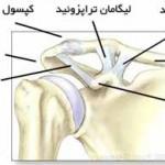 آسیب مفصل بین استخوان های ترقوه و کتف (آکرومیوکلاویکولر)