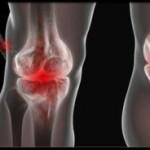 داروهای ضدالتهاب در درمان آرتروز