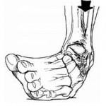 تشخیص و درمان رگ به رگ شدن یا پیچ خوردگی مفصل
