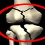 درمان و عوامل پوکی استخوان