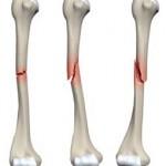 شکستگی استخوان: تشخیص ، درمان و علل آن