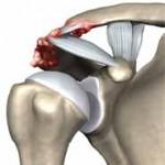 آرتروز مفصل بین استخوان ترقوه و استخوان کتف (آکرومیوکلاویکولر)