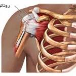 درد شانه (پارگی روتاتور کاف) و علائم آن