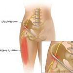 درد مفصل ران در بچه ها