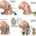 علل و درمان بدون جراحی پارگی رباط صلیبی زانو