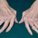 درمان و علائم روماتیسم مفصلی دست