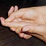 علائم بریدگی تاندون های فلکسور (خم کننده انگشتان دست)