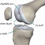 .تعویض مجدد مفصل مصنوعی زانو به چه علت انجام میشود