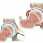 درد مفصل ران در بچه ها (سینوویت گذرا) و درمان آن