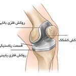 عوارض بعد از جراحی تعویض مفصل زانو