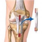 رباط متقاطع قدامی ( رباط صلیبی قدامی) ACL به چه روش های جراحی بازسازی میشود ؟