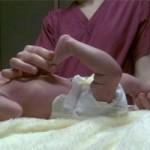 در رفتگی مادرزادی مفصل زانو
