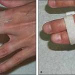 رگ به رگ شدن مفصل وسطی انگشت دست و درمان آن