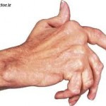 انواع آرتریت و علائم آن