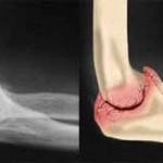 تشخیص،علت و علائم ساییدگی مفصل آرنج