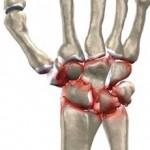 علت،علائم و درمان آرتروز مچ دست
