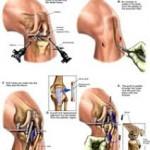 منیسک دیسکی شکل نوعی تغییر شکل مادرزادی منیسک در مفصل زانو است