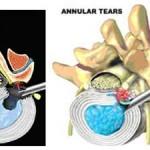 جراحی آندوسکوپی دیسک کمر