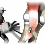 پارگی تاندون دوسر بازو در ناحیه آرنج و درمان آن